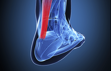 custom-orthotics-achilles_tendonitis.png