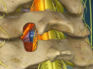 Cervical-Posterior-Foraminotomy.jpg