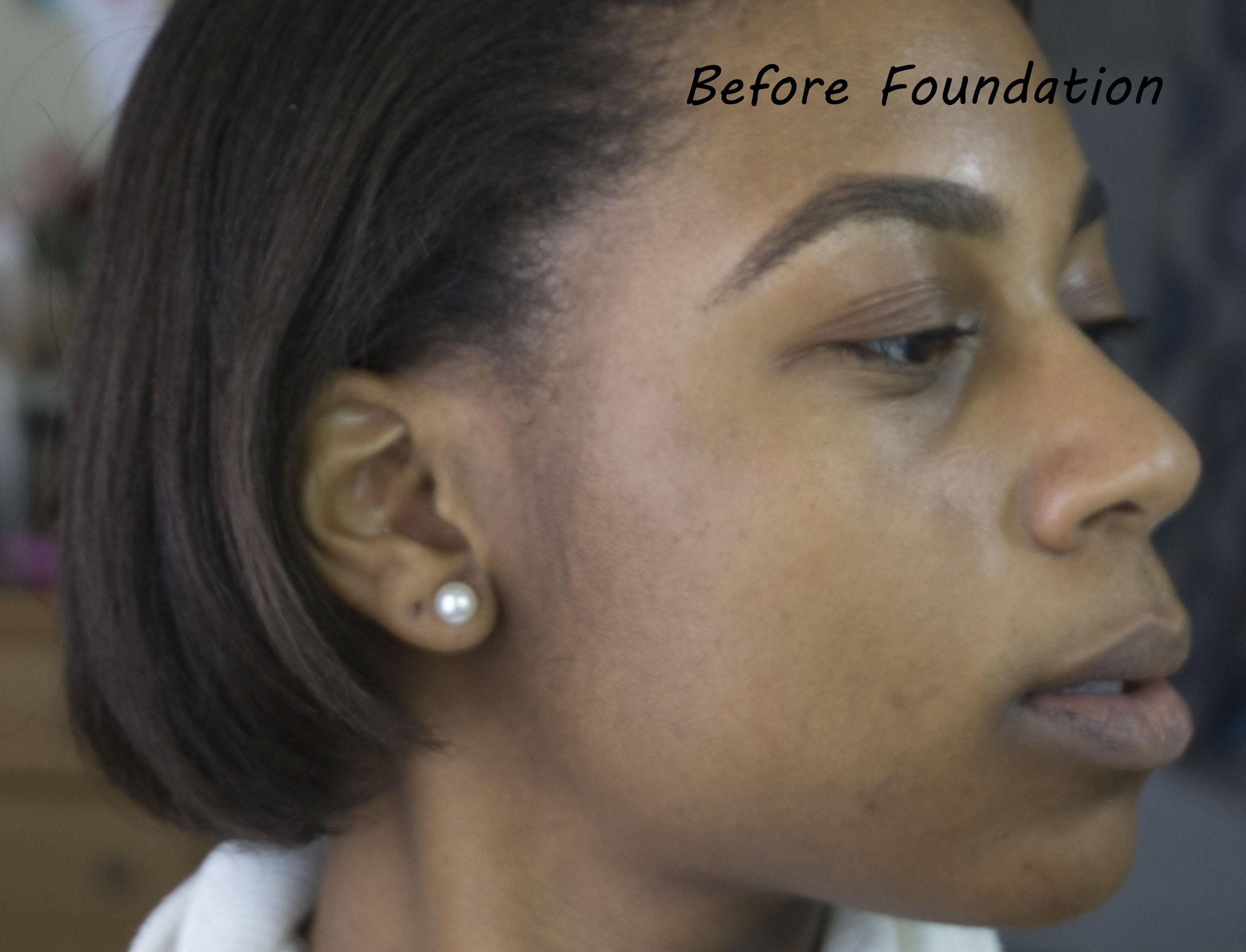 Before Foundation 1.jpg