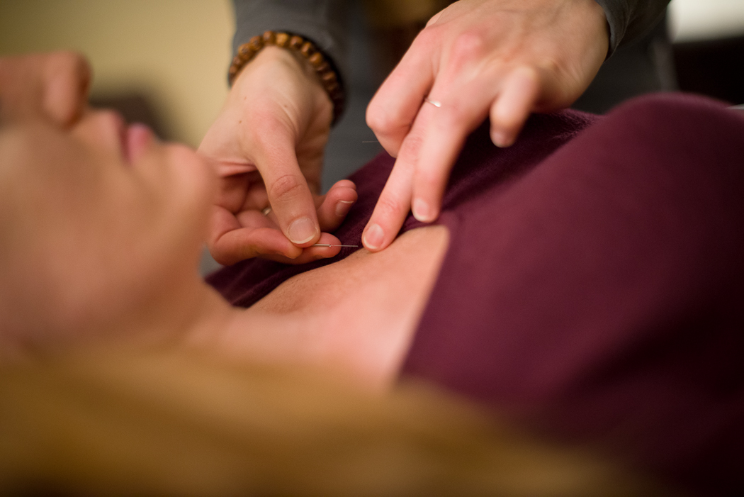 private-acupuncture-session.jpg