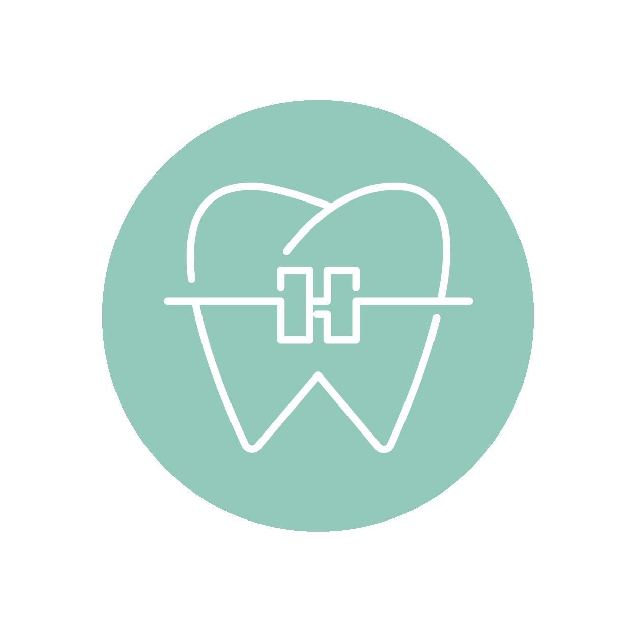 Therapie bei Erwachsenen - Lingualtechnik mit unsichtbaren SpangenBei erwachsenen Patienten haben wir mit der modernen Lingualtechnik sehr gute Erfahrungen gemacht. Dazu werden flache Brackets, deren Körper sich exakt der Form Ihrer Zähne anpassen, auf der Innenseite befestigt. Lesen Sie mehr zu dieser effizienten Methode der Zahnkorrektur. →–Vorbereitung für Zahnersatz und ImplantateWir können die Eingliederung von Zahnersatz vereinfachen, indem wir durch meist kleine Maßnahmen optimale Voraussetzungen im Kiefer schaffen. Durch eine kieferorthopädische Behandlung mit einer festen Zahnspange können beispielsweise gekippte Zähne aufgerichtet und Lücken vergrößert oder verkleinert werden. Die Eingliederung von Zahnersatz wie Brücken, Kronen oder Implantaten wird so deutlich vereinfacht oder erst ermöglicht. Bei dieser präprothetischen Kieferorthopädie arbeiten wir eng mit Ihrem Hauszahnarzt zusammen.–Verbesserung der Zahnhygiene bei ParodontitisParodontitis ist eine Entzündung des Zahnhalteapparates. Diese wird durch Zahnfehlstellungen begünstigt, da die Zähne beispielsweise durch Engstände schwieriger von bakteriellem Zahnbelag zu reinigen sind.–Vorbereitung für kieferchirurgische OperationenBei stark ausgeprägten Kieferfehlstellungen im Erwachsenenalter, bei denen die Funktion der Kiefer und die Gesichtsästhetik erheblich beeinträchtigt sind, ist ein optimales Behandlungsergebnis nur mit einer kombiniert kieferorthopädisch-kieferchirurgischen Behandlung mit einer Operation eines oder beider Kiefer zu erreichen.–Langfristige NachsorgeNach dem Entfernen der Zahnspange raten wir vielen Patienten dazu, einen Retainer zu tragen, der verhindert, dass die Zähne wieder in ihre ursprüngliche Position zurückkehren. Dünne, individuell gebogene Drähtchen werden auf der Innenseite der Frontzähne befestigt und sind von außen völlig unsichtbar. Sie stören weder beim Sprechen noch beim Essen.