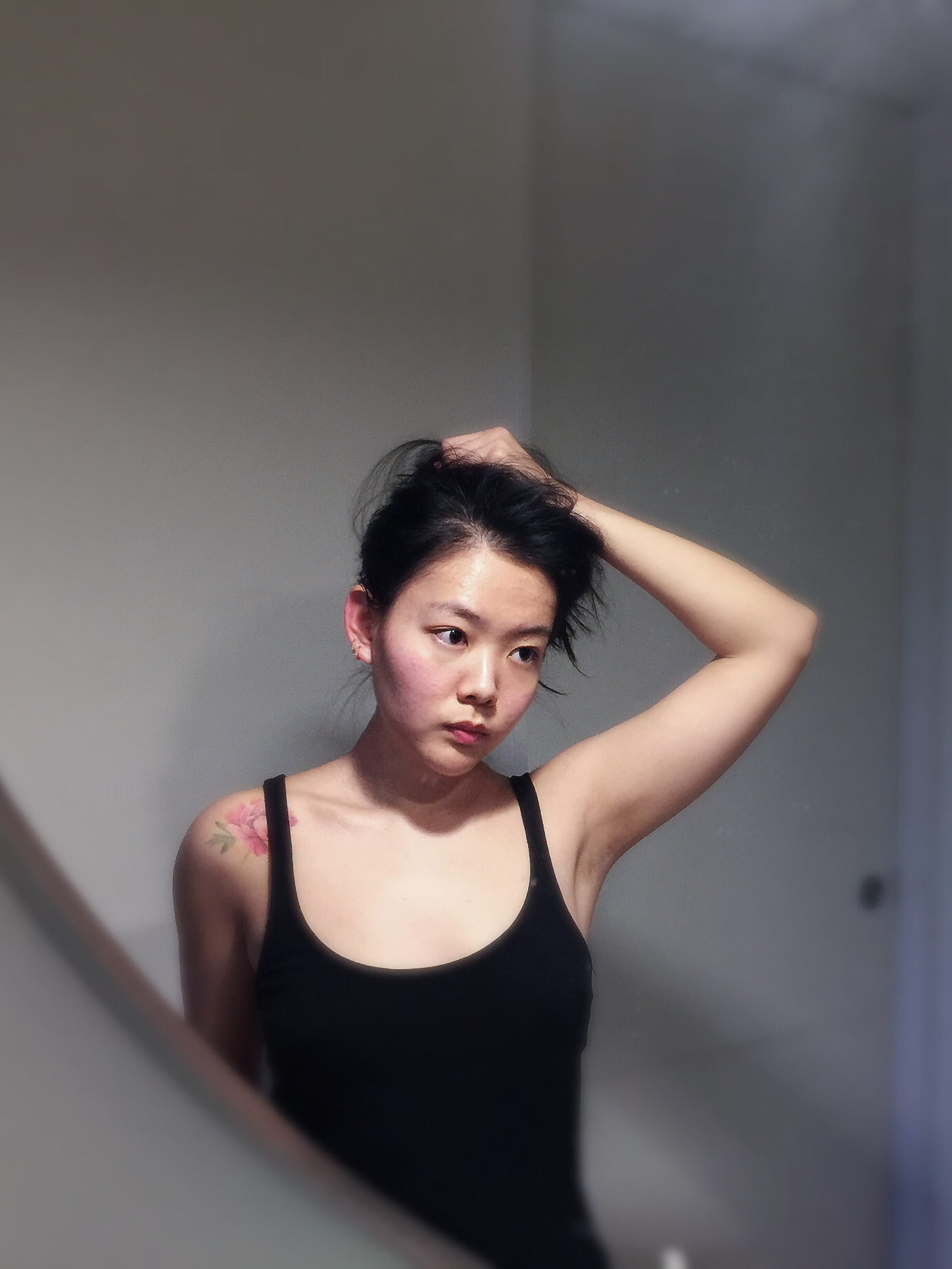 acne_prone_skin_6.JPG
