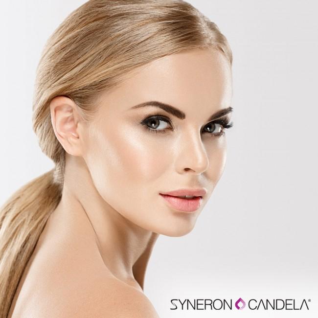 syneron-candela-3-brand.jpg