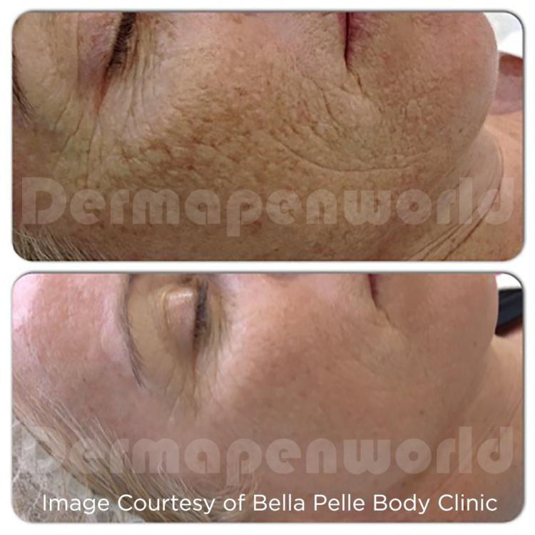 Bella Pelle DP3 Aglycation.png