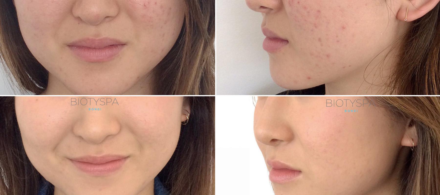 03-facial_peel-before_after.jpg