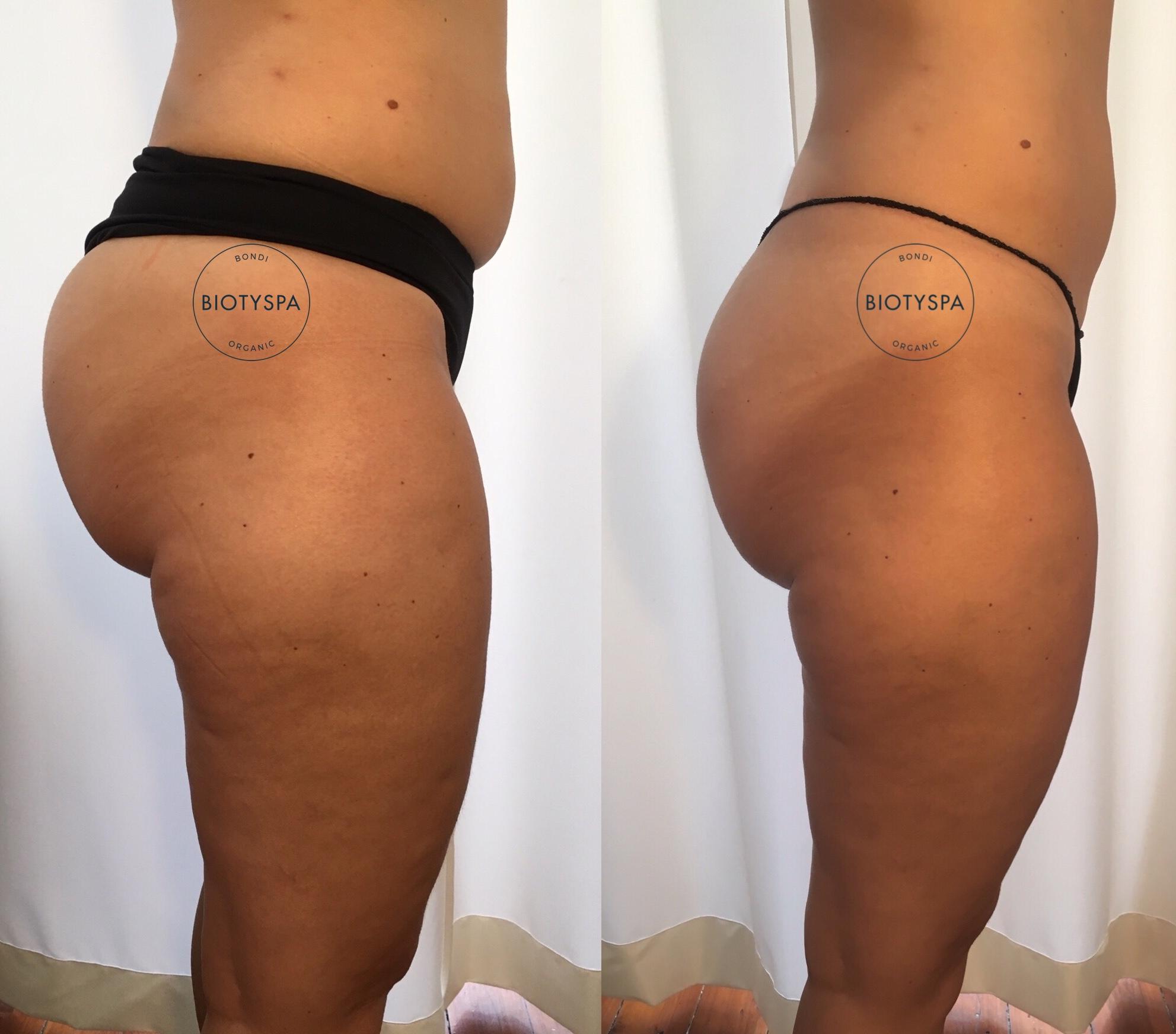 cellulite-treatment-biotyspa-activeslim-sides.jpg