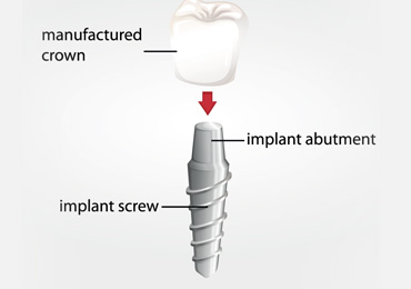 DENTAL IMPLANT WITH CROWN - Replacing a tooth with a dental implant is the closest thing to starting over that dentistry has to offer. The tooth is made complete by design and delivery of an