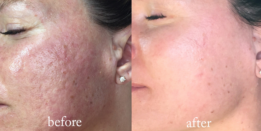 Jacqueline's actual skin after 4 Micro-needling treatments