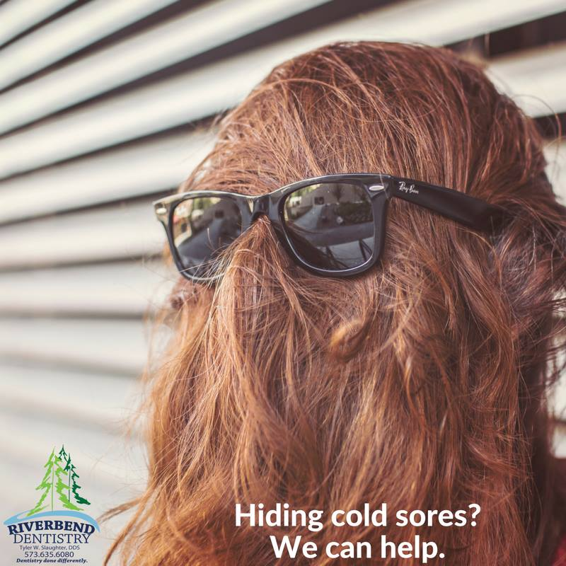 cold sores.jpg