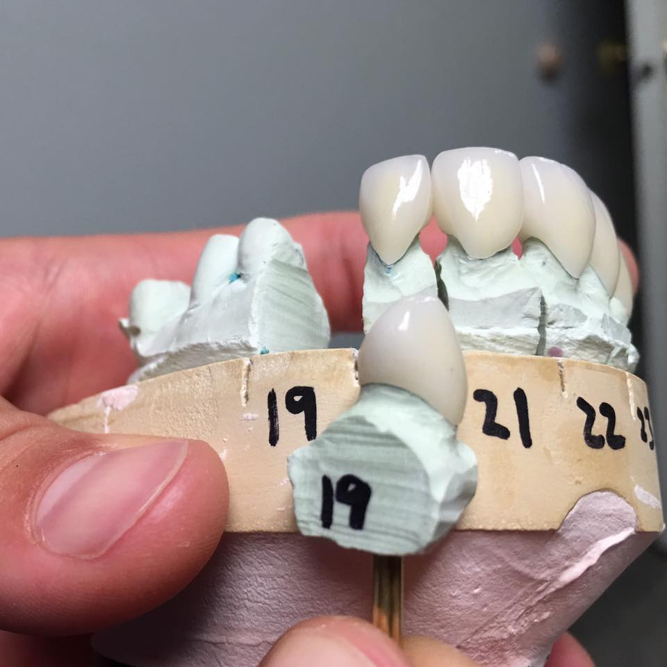 A multiple crown case by Dr. Slaughter: