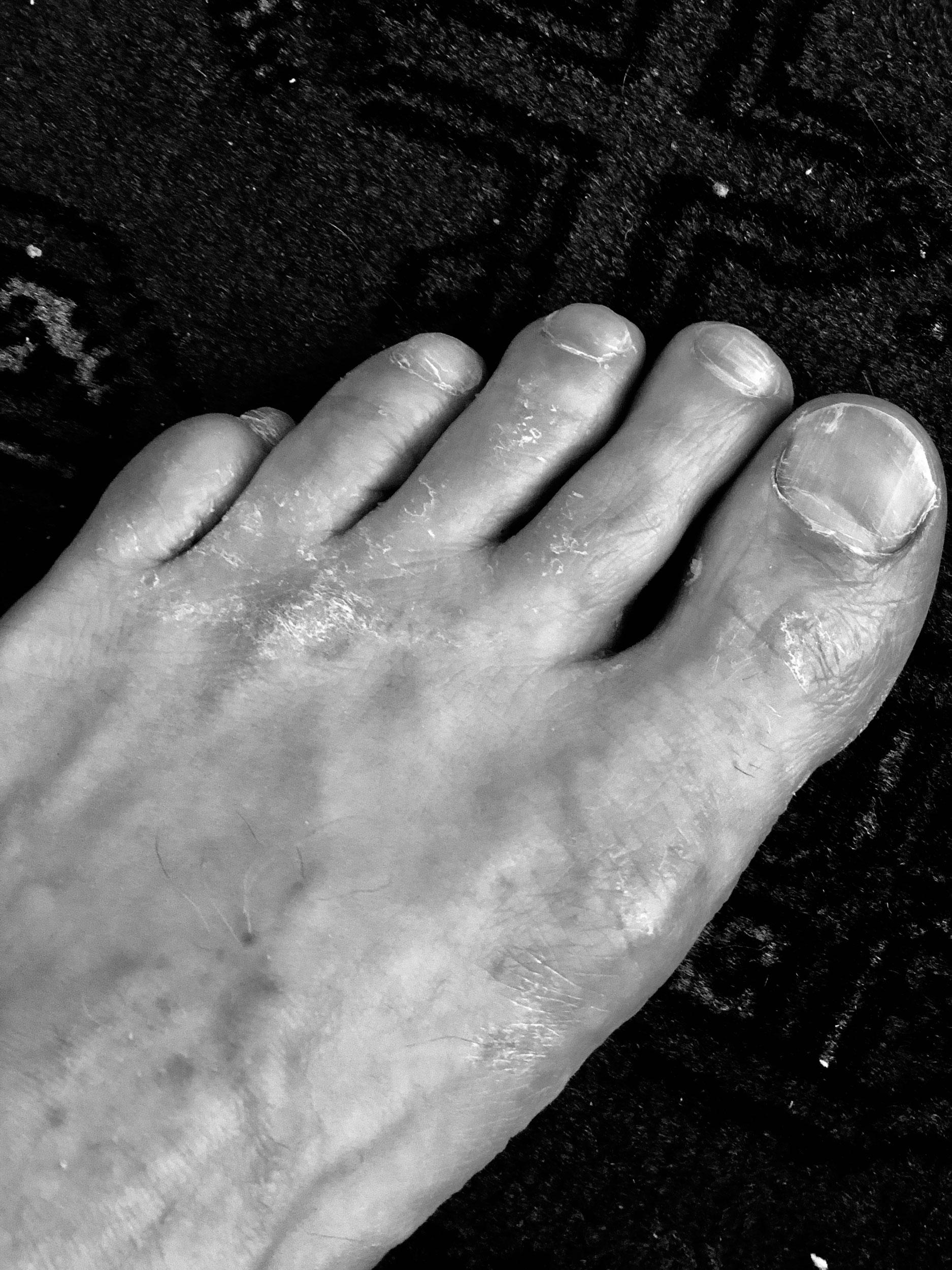 Z-feet-2.jpg