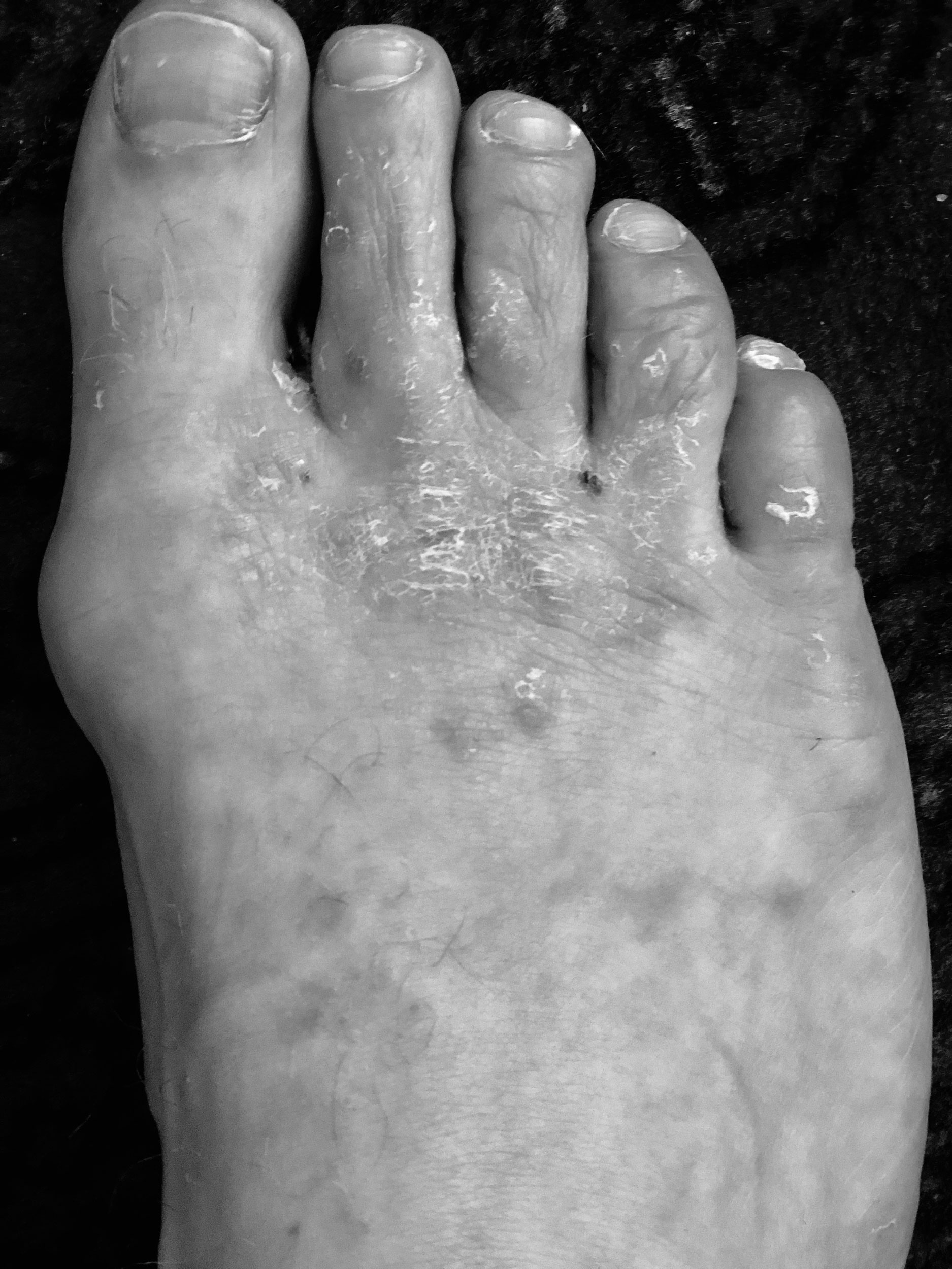 Z-feet-1.jpg