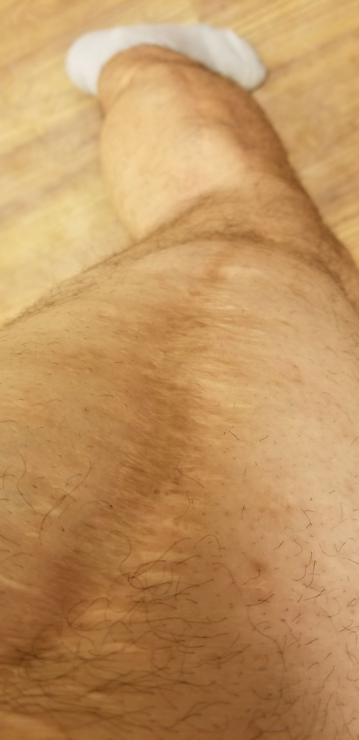 EH-scar.jpg