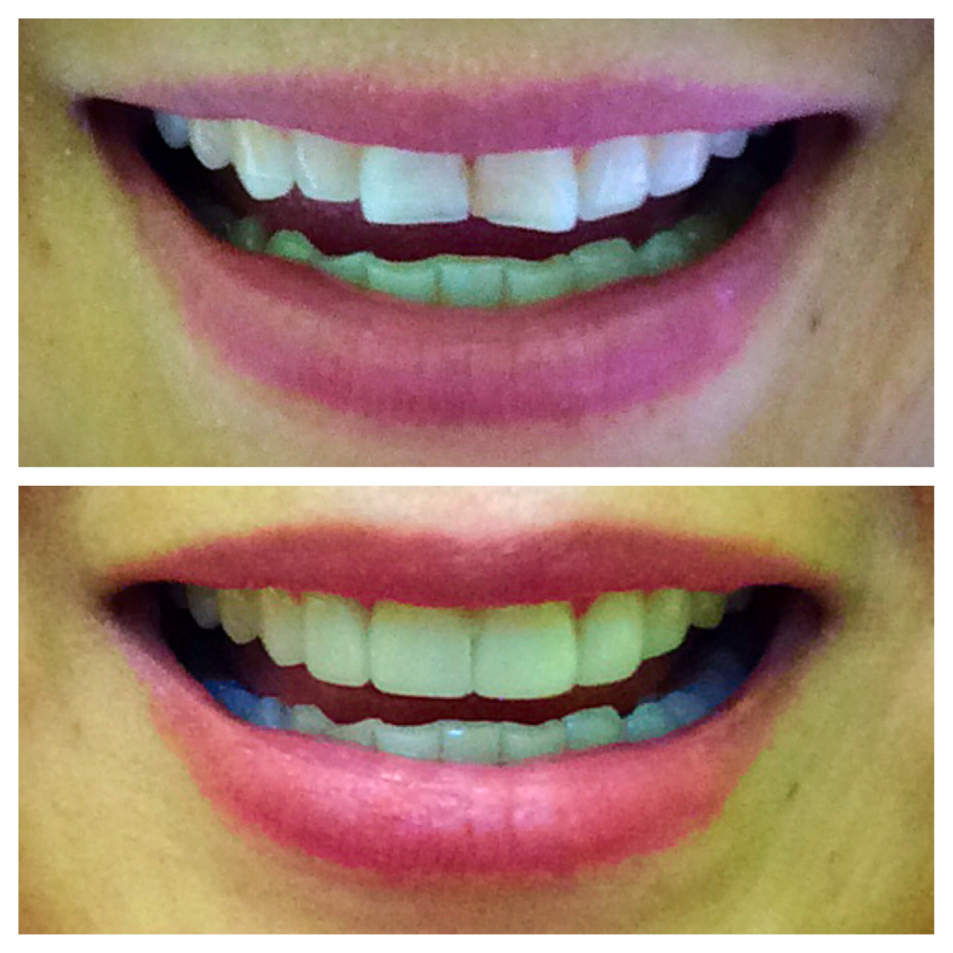 Veneer (before and after)