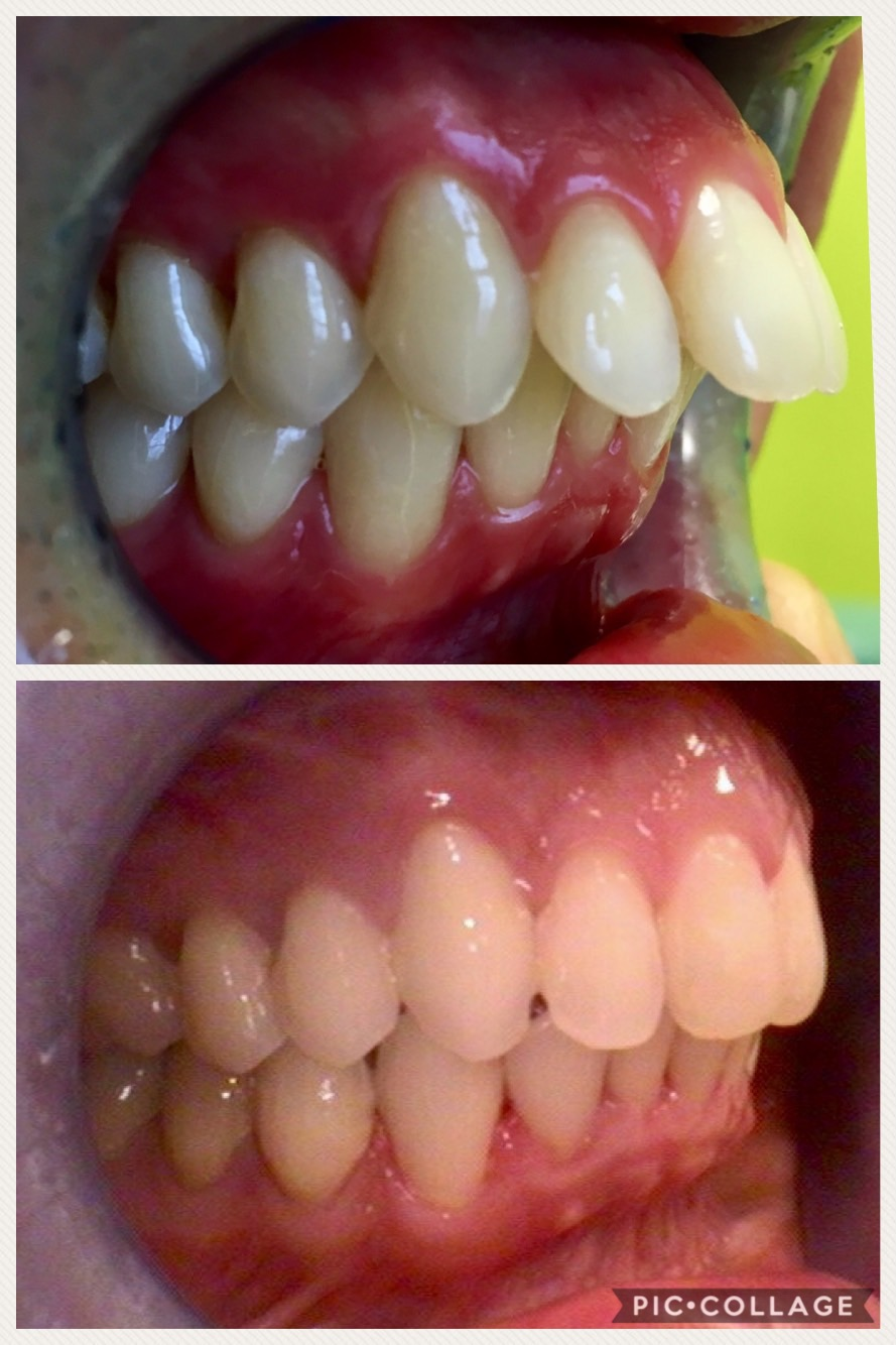Fast Braces (before and after)