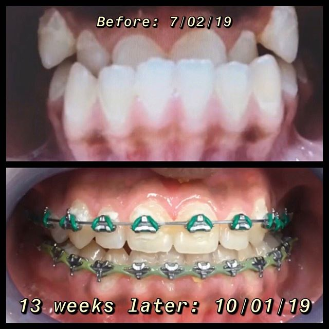 Sharing one of our daily accomplishment on #fastbracestechnology . 🙌 🦷 Fastbraces amazing results with no extraction and no appliance needed. 😄  Tag a friend who needs to see this.  #13weeksfastbracesresult #fastbraces® #veneers #dentistrywithasmile #fastbraces #orthodontics #dental #livingstonnj #livingstontowncenter #clearcorrect #zoomteethwhitening #shorthillsnj #dentures #flouride #dentalrestoration #myshinyteethandme #cosmeticdentistry #generaldentistry