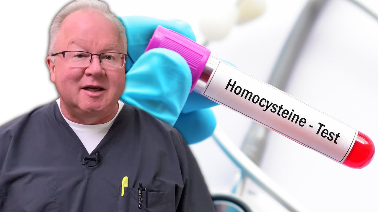 Dr. Purser gives insights how to recognize if you have a high homocysteine level.jpg