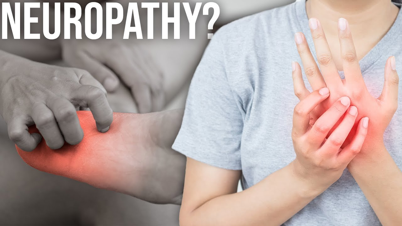 Do You Have Chemo Neuropathy.jpg