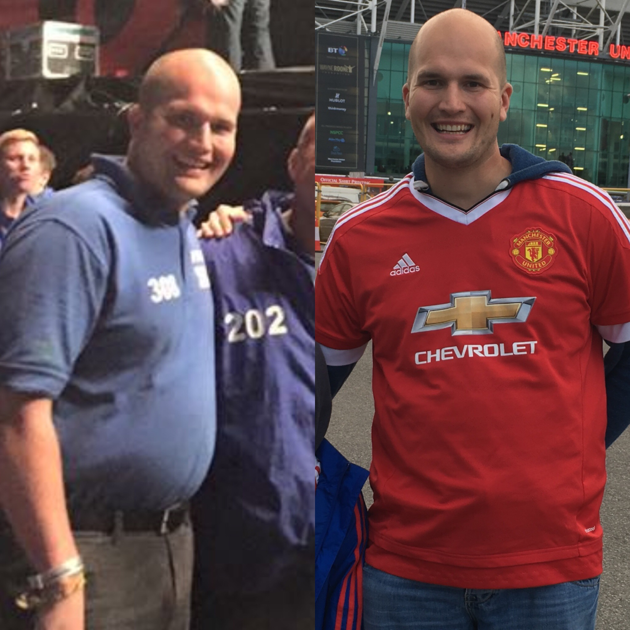 This is why I know hypnotherapy weight loss works: Me - before and following treatment.