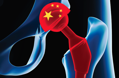 Medical Tourism Treatments in Asia, symbolized by a hip with a Chinese flag on hipjoint