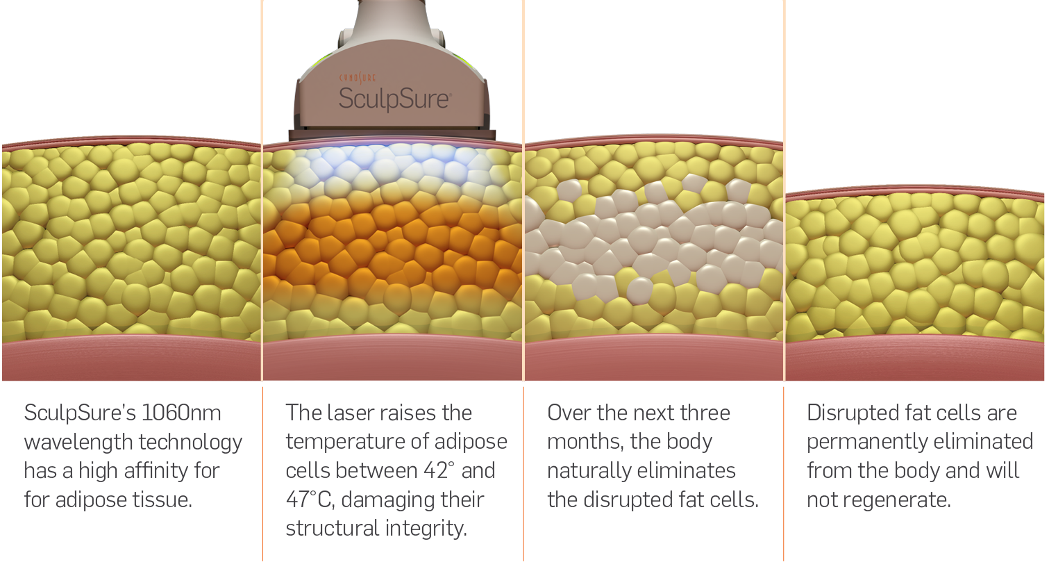 Sculpsure.png