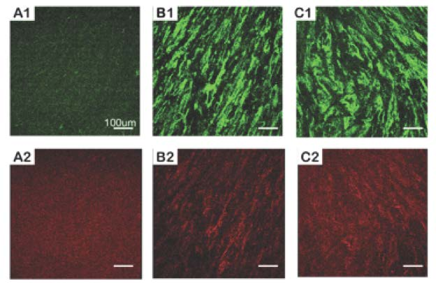 Human cells producing Type I and Type III collagen in peptide hydrogel scaffold.