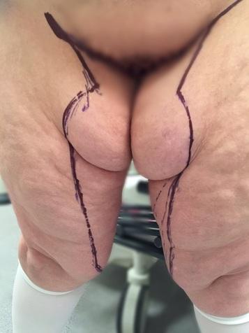 thigh1.jpg