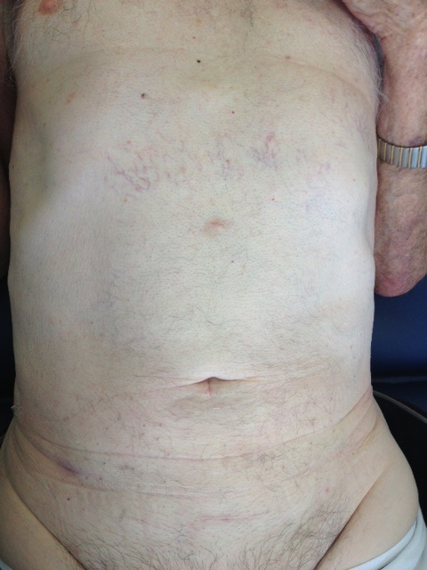 The patient is this picture is two weeks after underging keyhole-surgery for lower large bowel cancer. The surgery was performed laparoscopically through several small skin incisions, as seen above, with complete removal of cancer, lymph-node clearance and intra-corporeal anastomosis and without need of ileostomy. The patient was 79 year old at the time and now, several years after surgery he is cured from cancer.