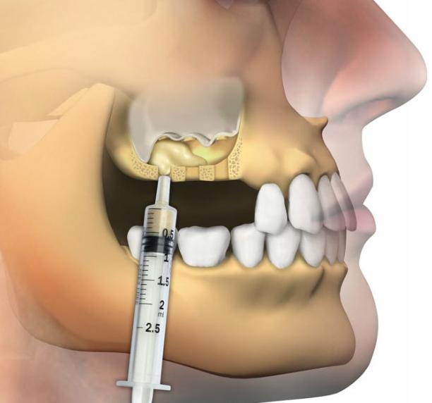 Sinus Augmentation / Sinus Lift
