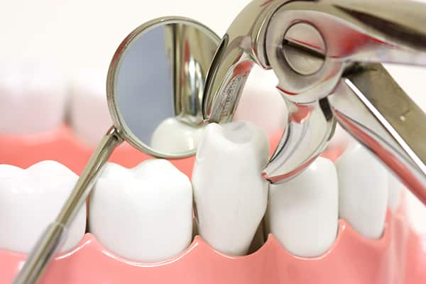 tooth-extractions.jpg