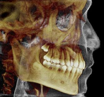 Advanced 3D Imaging & CT Scans