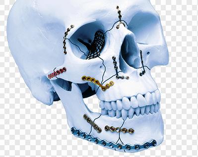 Dental & Maxillofacial Trauma