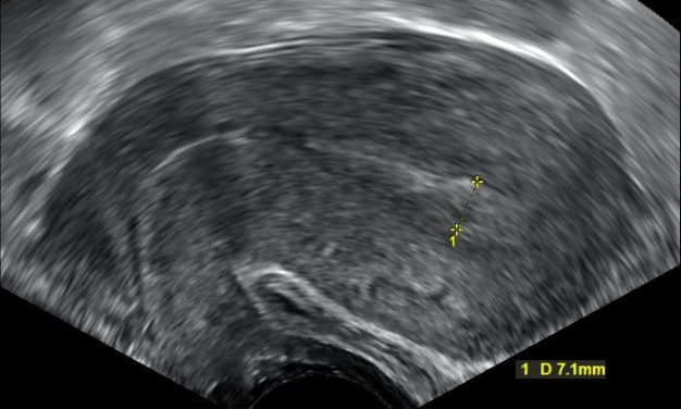 "Transvaginal ultrasonography after an episode of heavy bleeding in an intrauterine pregnancy that had been confirmed by a previous ultrasononography.  There is some widening between the uterine walls, but no sign of any gestational sac, thus in this case being diagnostic of a complete miscarriage.  Häggström, Mikael (2014). ""Medical gallery of Mikael Häggström 2014"". WikiJournal of Medicine 1"