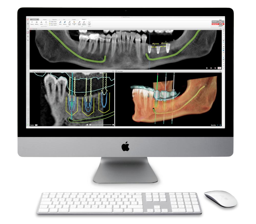 Dentexcel All On 4 Implants on screen