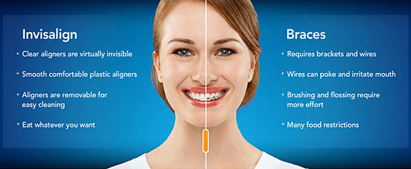 Difference_between_Invisalign_And_Braces.png