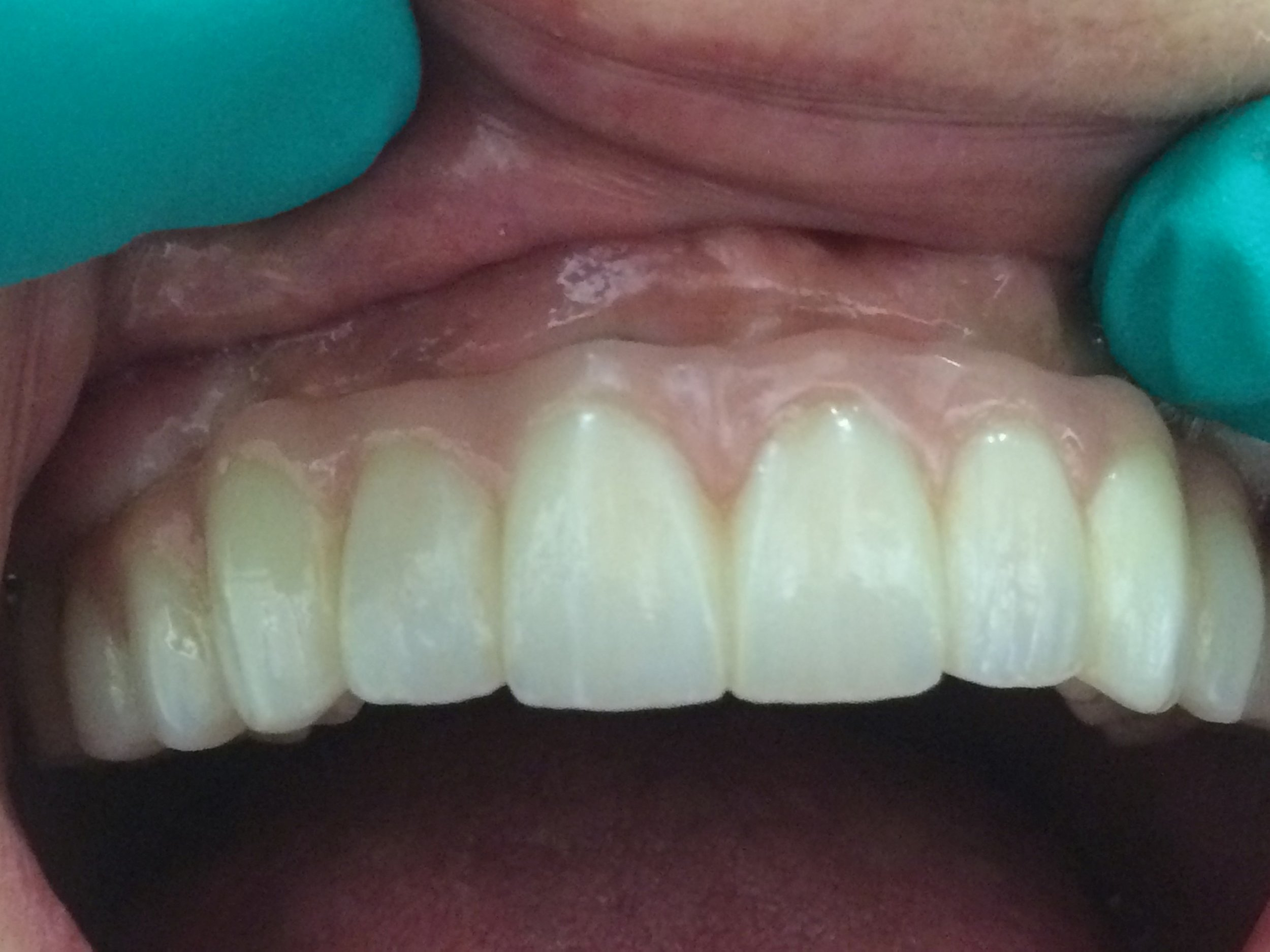 Completely Fixed Upper Appliance with Dental Implants.