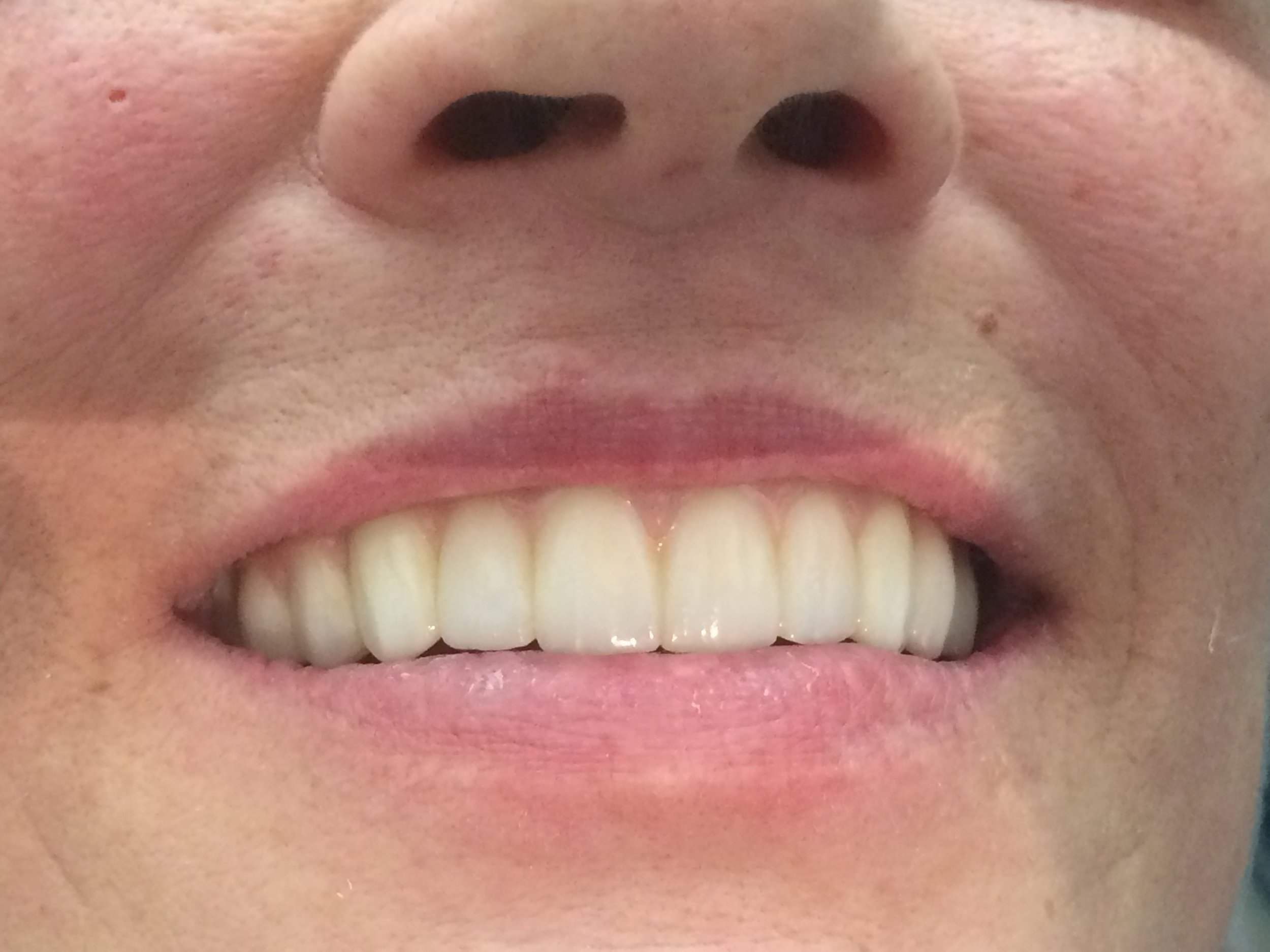 Fixed Upper Appliance with Dental Implants