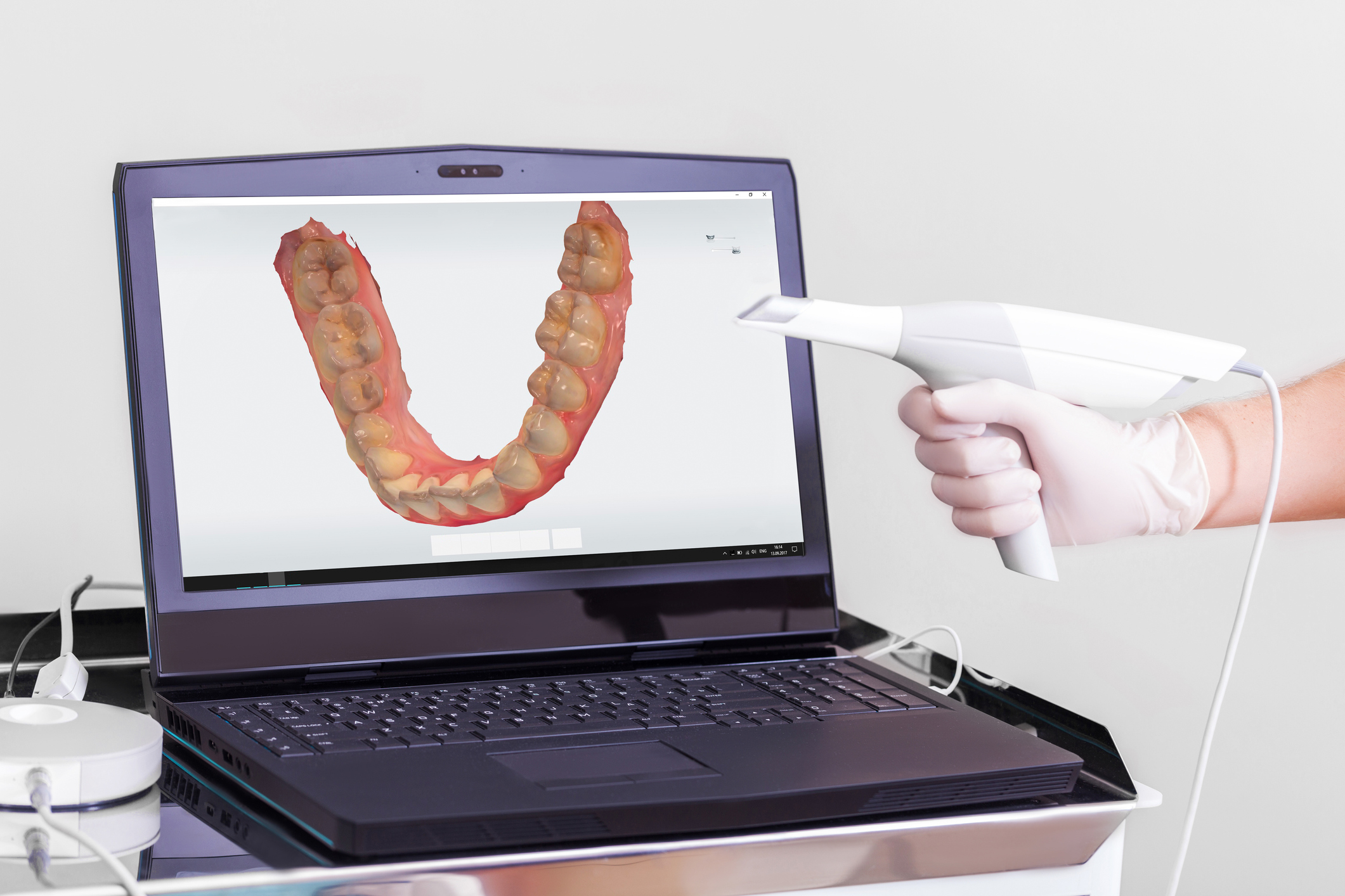 3D Scanner that helps eliminate impression making. Trios 3Shape System