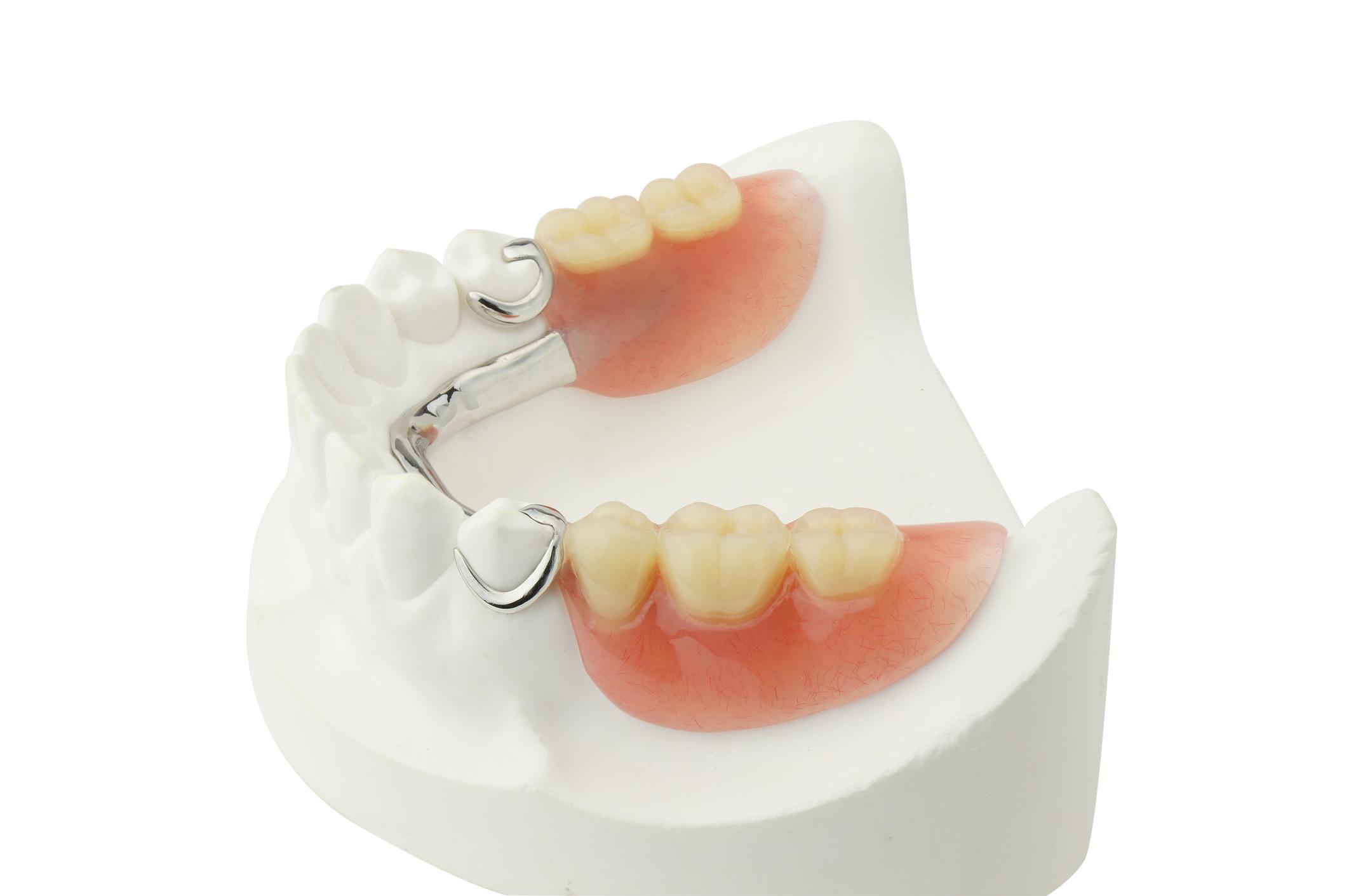 Lower Partial Denture (RPD)
