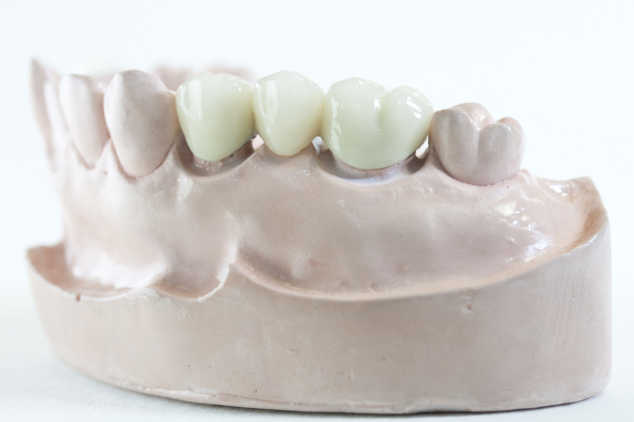 Dental Bridge- 3 units - 2 teeth replace 1 missing in the middle.