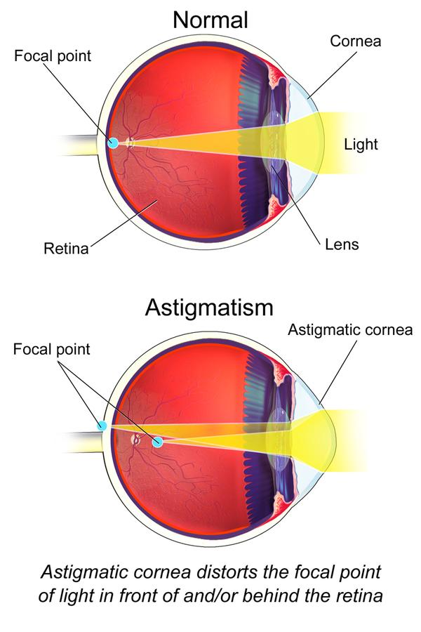 Astigmatism_(Eye).png