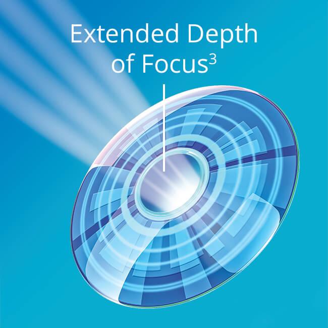 NVMF_extended_depth_of_focus.jpg