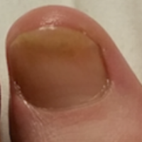 After one month using toenail tonic,fungus grows out.