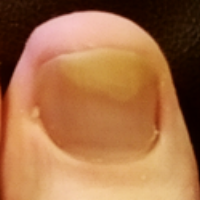 Client's nail before treatment.