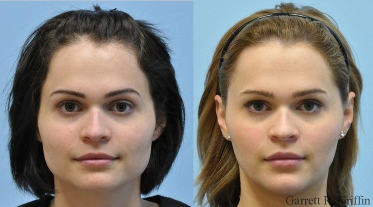 Botox for a Skinny Face — LIFE OF JENNA