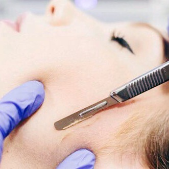 I've had lots of clients asking me about the process of dermaplaning. ~ Dermaplaning is form of exfoliation using a sterile, surgical scalpel to gently remove the dead skin sitting on the surface along with fine vellus hair that can trap dirt and oils. ~ The process doesn't hurt at all and there is no down time. Your hair does not grow back thicker or darker it will simply grow back exactly the same as it was before. ~ Dermaplaning promotes deeper product penetration, boosting the effects of skincare products and giving your skin a radiant glow. ~ I will be posting a video showing the process very soon ✨