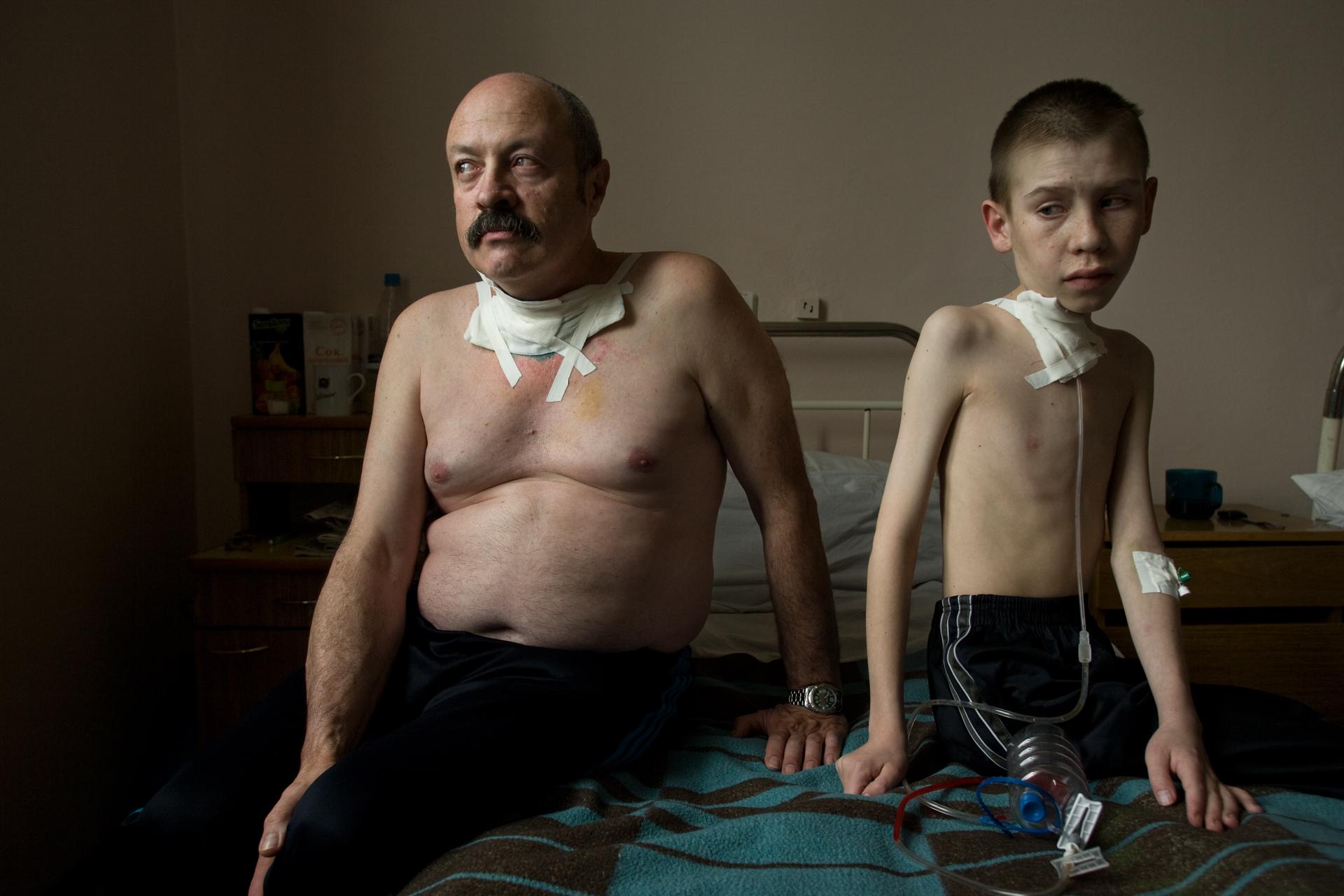 Suffering from thyroid cancer, which has been linked to the Cesium fallout from the Chernobyl accident, Oleg Shapiro, 54, and Dima Bogdanovich, 13, receive care at a thyroid hospital in Belarus.  Minsk, Belarus
