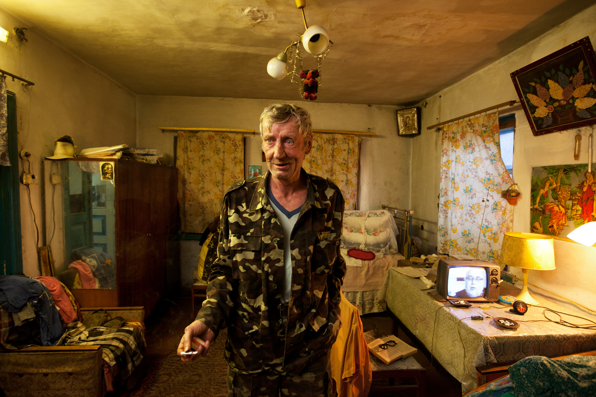The skin of 54-year-old returnee Vladimir shows signs of aging beyond his years, which doctors contribute to radiation.  Lubyanka, Ukraine