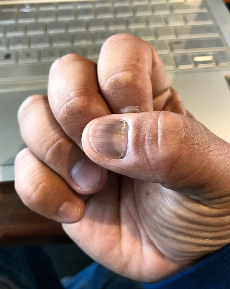 """Black spotting"" on nails."