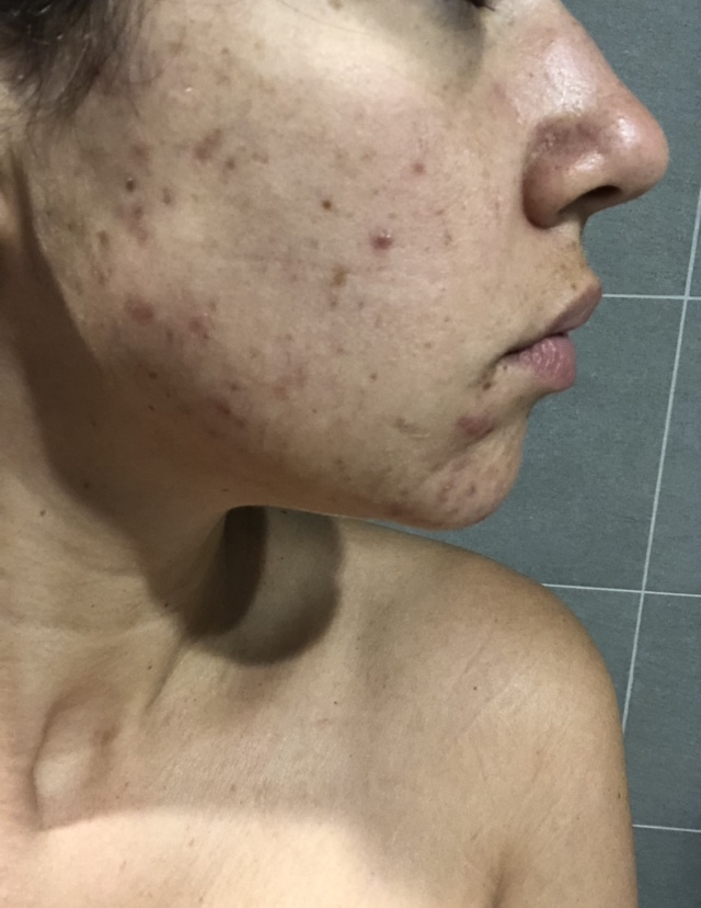 Side shot of face with acne breakout